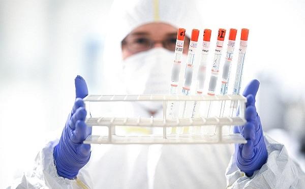 В Грузии выявлен 2 501 новый случай коронавируса
