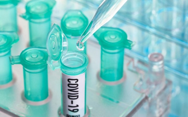 В Грузии за последние сутки выявлено два новых случая инфицирования коронавирусом