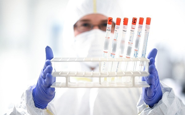 В Грузии выявлено 2 316 новых случаев коронавируса